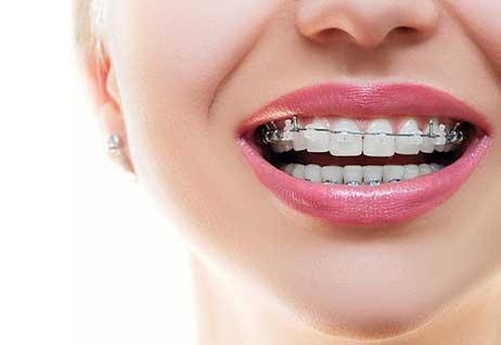 歯科矯正や銀歯があっても大丈夫