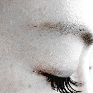 眉下脱毛の施術後