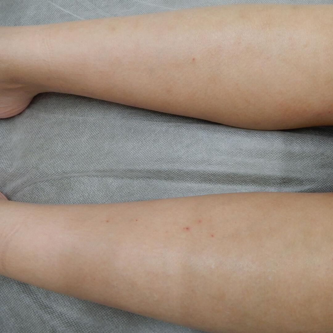 膝下脱毛の施術後