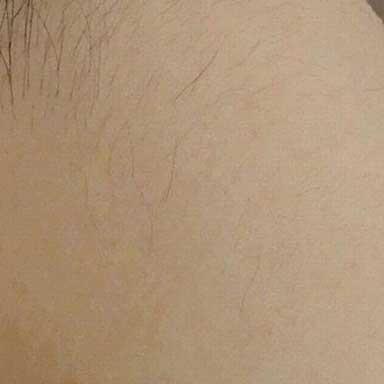 うなじ脱毛の施術後