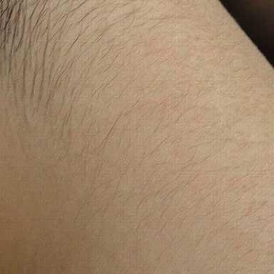 うなじ脱毛の施術前