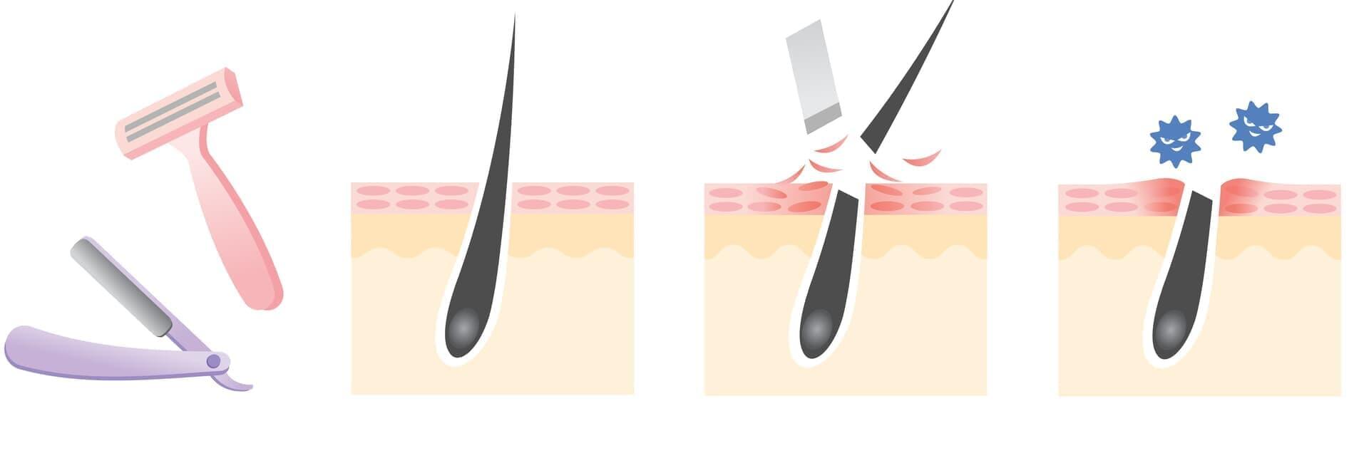 VIOラインの毛をカミソリで剃るのは手軽だけど危険