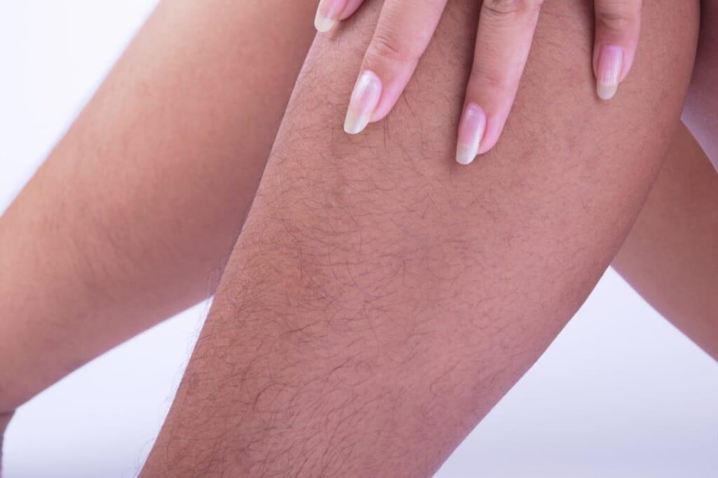 女性が毛深くなる(体毛が濃くなる)原因と基準は?脱毛による対策がおすすめの理由