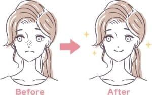 鼻(小鼻)の脱毛で「いちご鼻」を解消!毛穴や黒ずみが改善される理由も解説