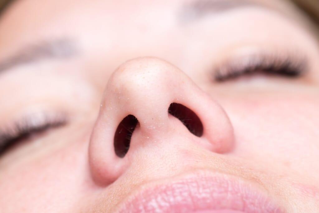 鼻毛脱毛は医療のレーザー脱毛でできるの?痛みについても解説